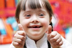 downsyndrome-617x416